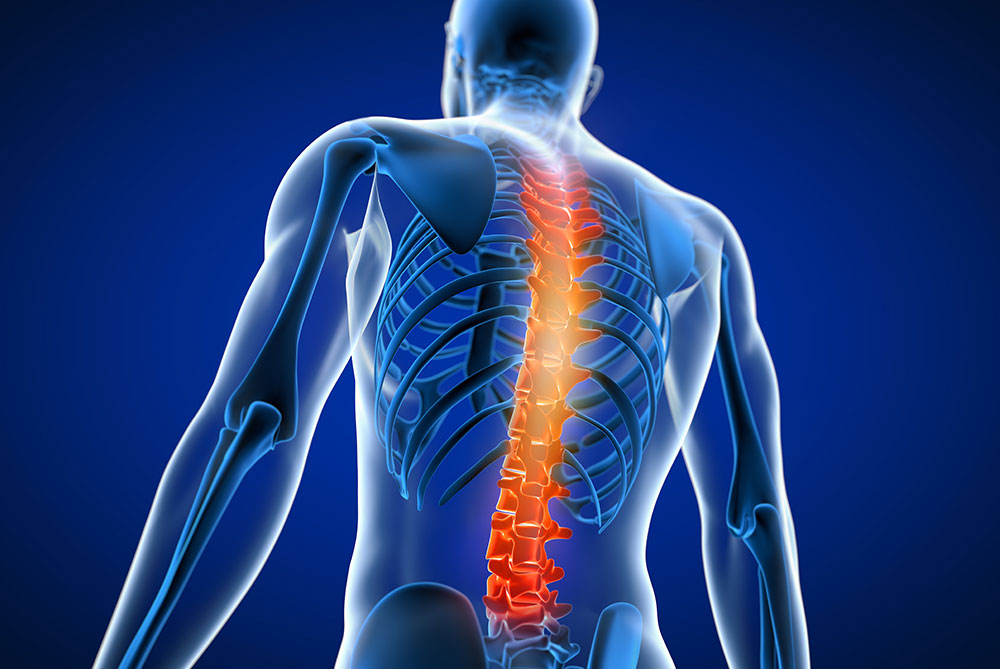 rendering of human body showing back pain with enflamed spine in orange